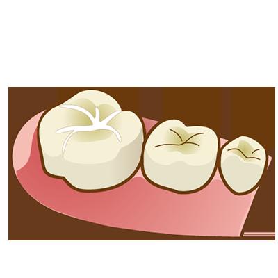歯を削らず予防するシーラント